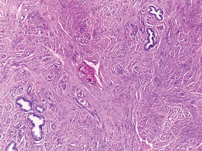 Cervical adenoma malignum: Diagnostic dilemma of a rare form