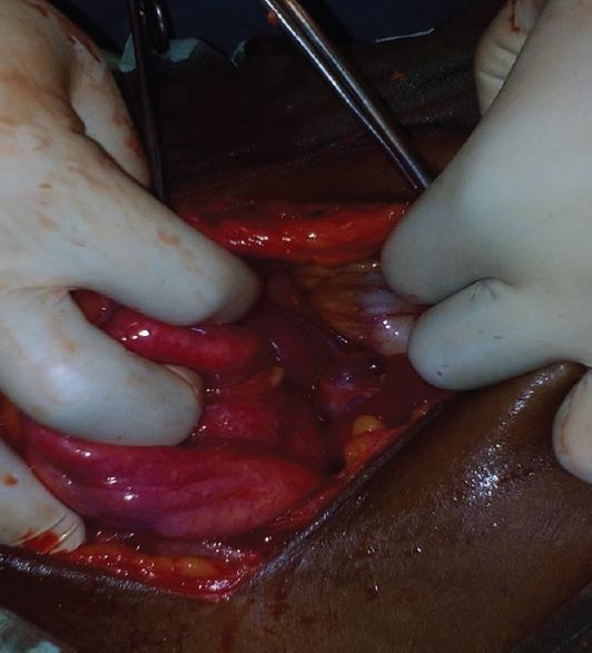 Infected huge prolapsed polypoidal fibroid: Issues of neglect and